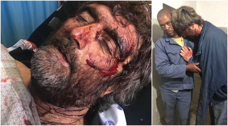 FARM ATTACK: Stabbed 20 times, Plastic bag pulled over his head, Hands & Feet bounded, Survives