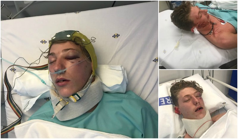 Brutal Beating leaves 1 person in hospital another one facing charges of attempted murder
